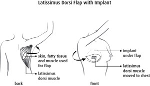 Diagram of Dorsi Flap with Implant